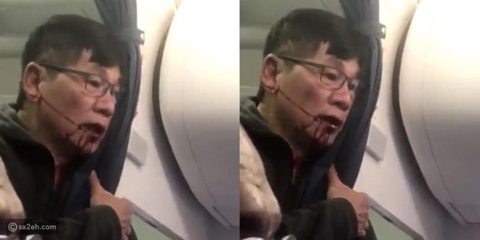 """عقرب يلدغ راكب على متن طائرة """"يونايتد إيرلاينز"""".. تفاصيل صادمة"""